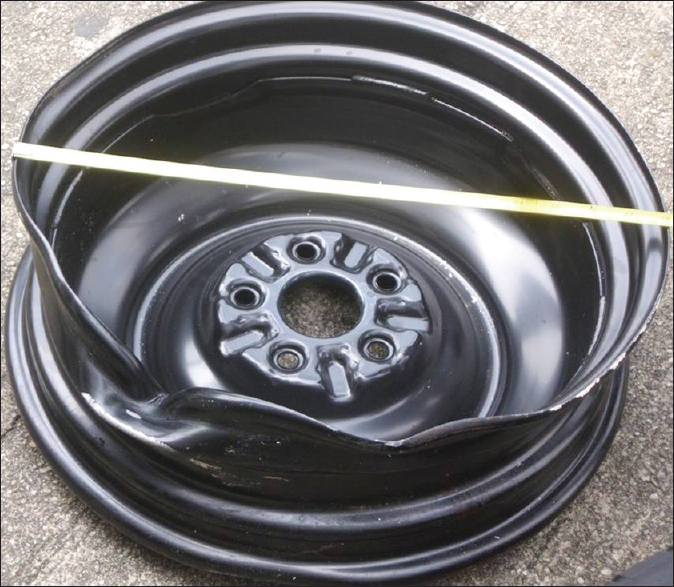 Figure 7: The black metal rim that impacted the victim. Note the depression on one side
